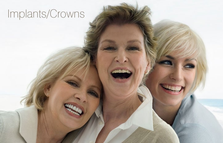 Three women smiling with dental implants