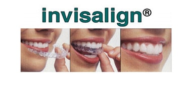 invisalign works like braces but is easier to use and less noticeable