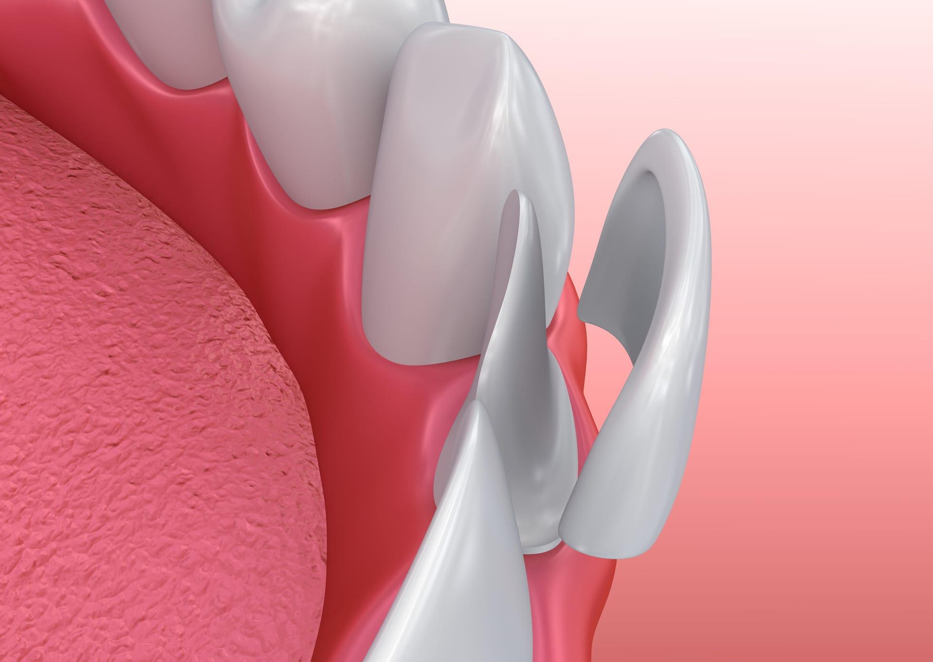 painless dentist